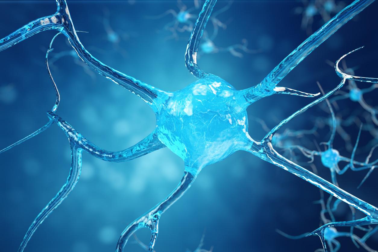 Болестта на Алцхаймер е необратимо, прогресивно мозъчно заболяване, което бавно