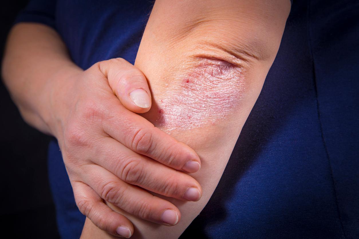 Като автоимунно кожно заболяване, псориазисът все още е нелечим и