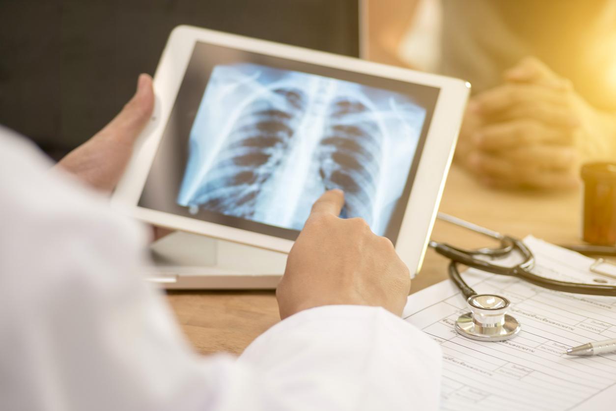 Снимка: Безплатни прегледи за туберкулоза