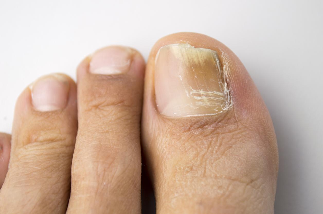 Пожълтяване и деформиране на нокътната плочка, сърбеж, зачервяване и лющене