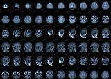 Анатомия на човека! Brain_mri