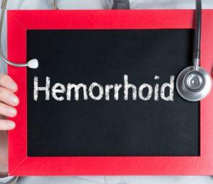 Как се лекуват хемороиди?