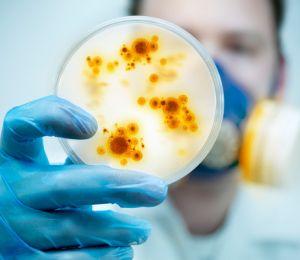 Публичните места, където гъмжи от бактерии