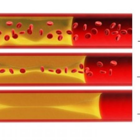 Атеросклероза - стеснение на съда