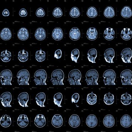 ЯМР на глава и главен мозък