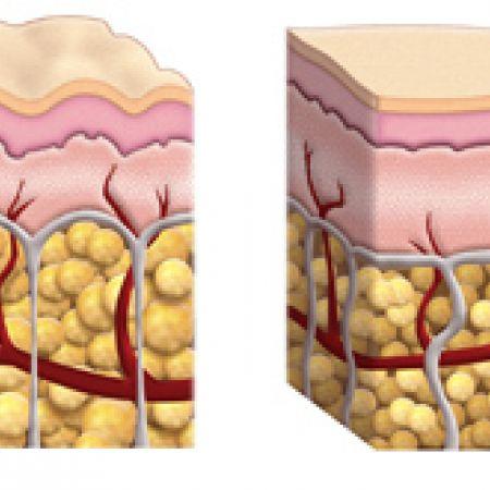 Устройство на кожата