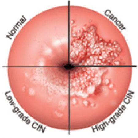 Степени на дисплазия и рак