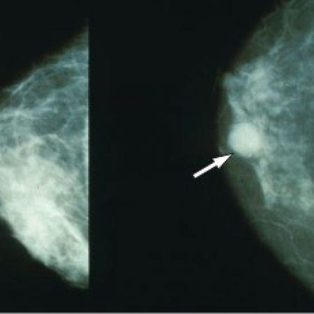 Мамография