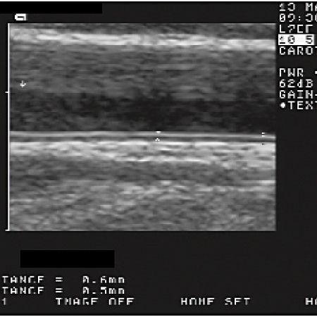 Атеросклероза - ултразвуково изследване