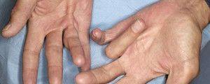 Дюпюитреновата болест - когато пръстите останат принудително свити