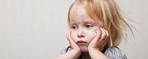 PoxClin® – следовать варицела лишенный чего сърбеж