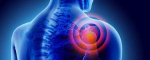 Кинезитерапия при болки в рамото