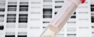 Системният лупус може да имитира всички други болести